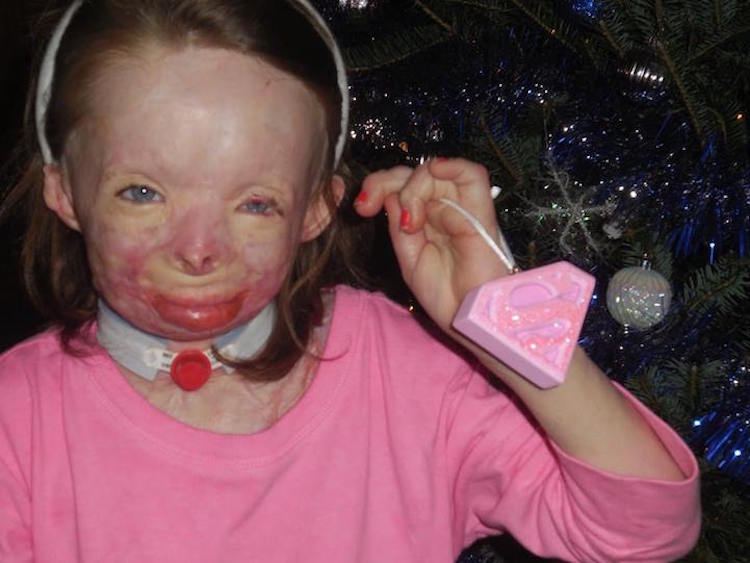 Little Girl Severely Burned in Arson Attack Only Wants Cards for ...