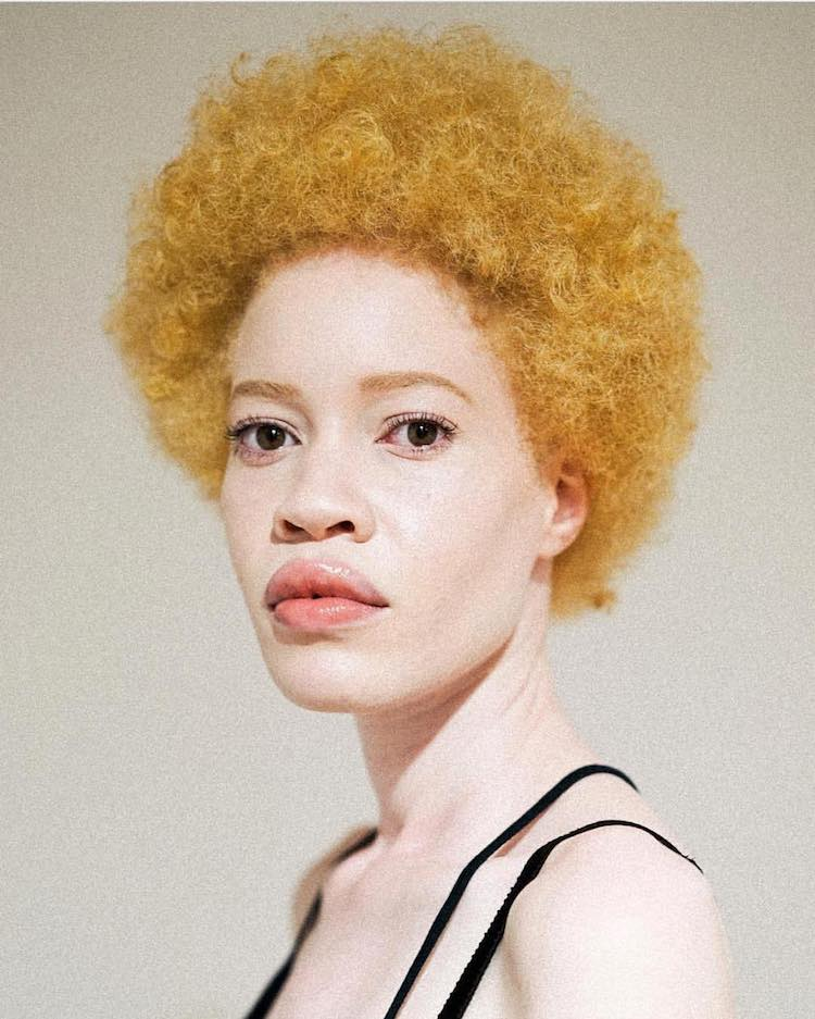 Albino Model Challenges Perceptions of Beauty in the Fashion Industry