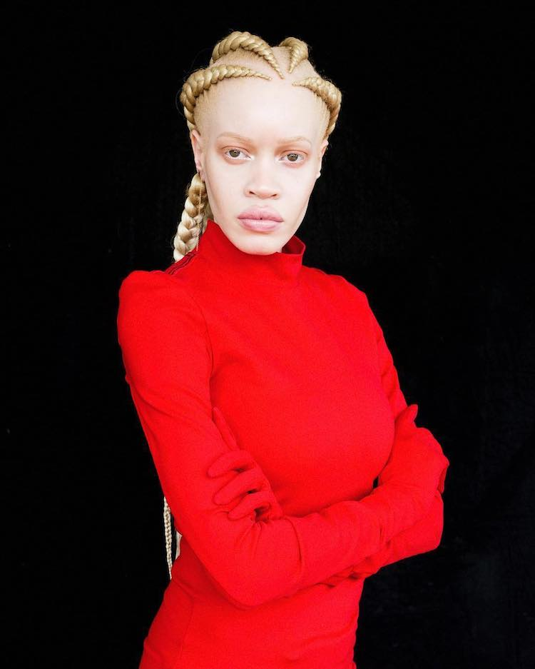Model with Albinism Challenges Perceptions of Beauty in the Fashion Industry