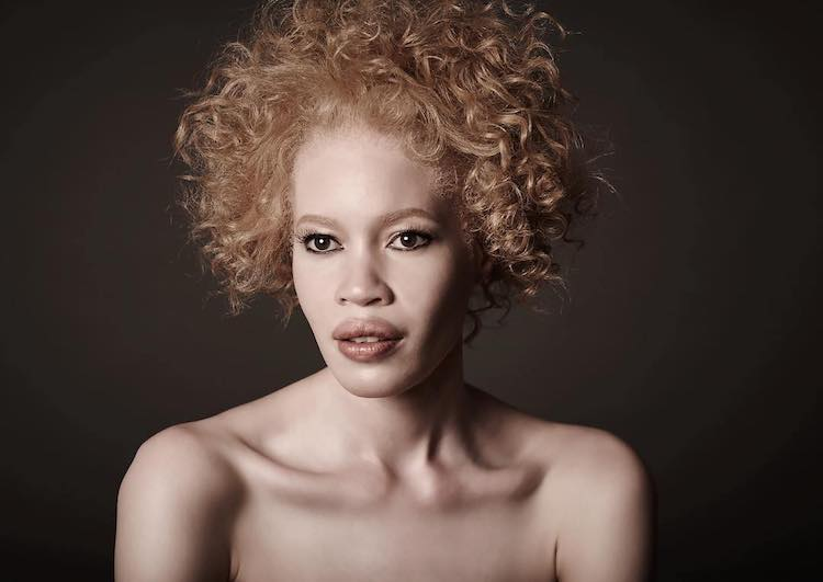 Stunning Model with Albinism Expands the Definition of Beauty