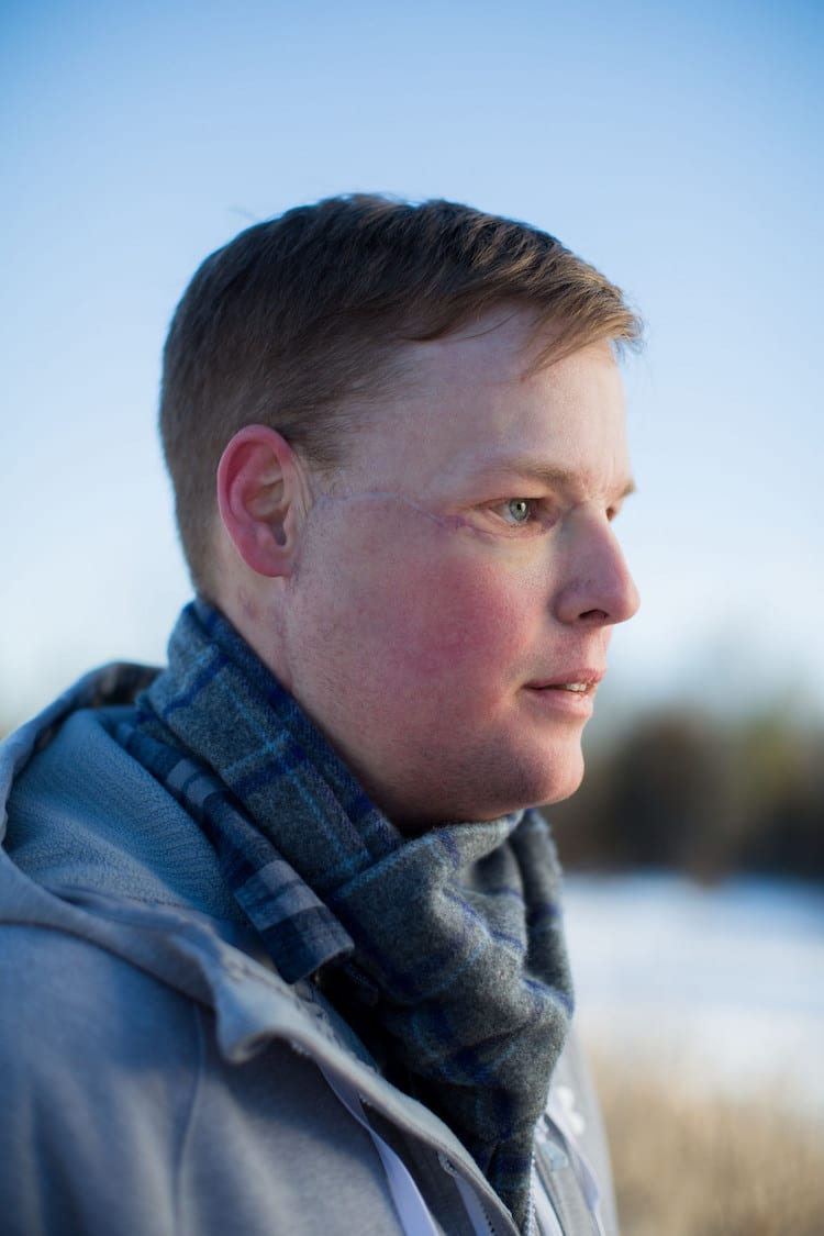 first face transplant andy sandness mayo clinic