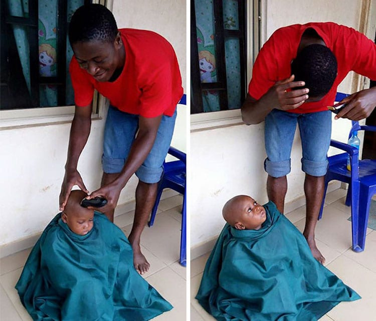 3-Year-Old Boy Named Hope Now Thrives After Almost Starving