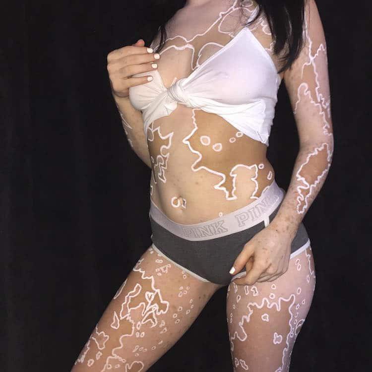 ash soto body positivity vitiligo