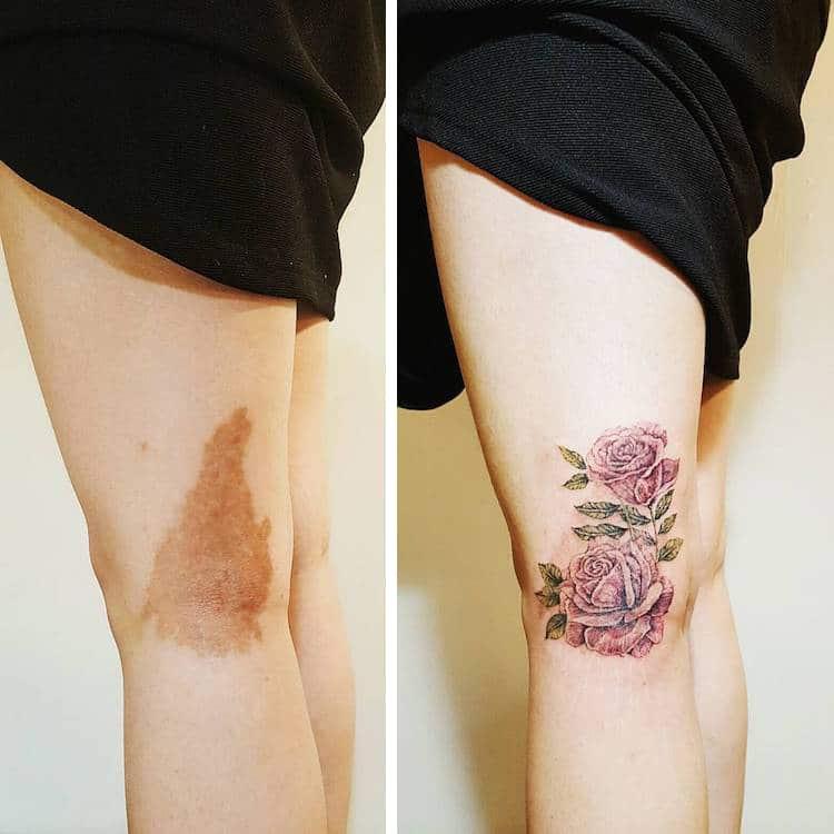 most creative birthmark tattoos