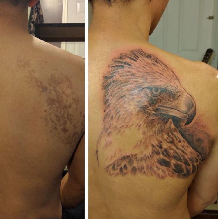 birthmark tattoo cover ups