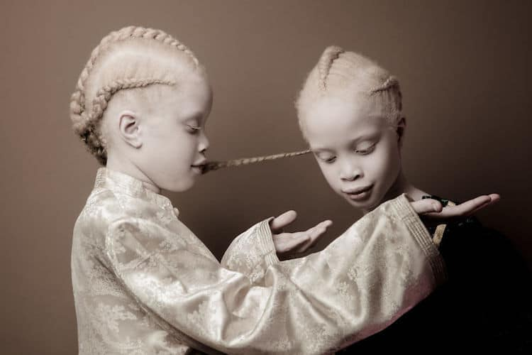 model with albinism