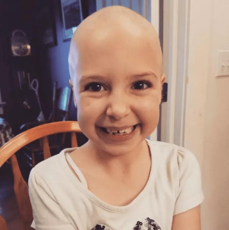 crazy hair day alopecia daniella vinanti wride ginessa inspiring stories