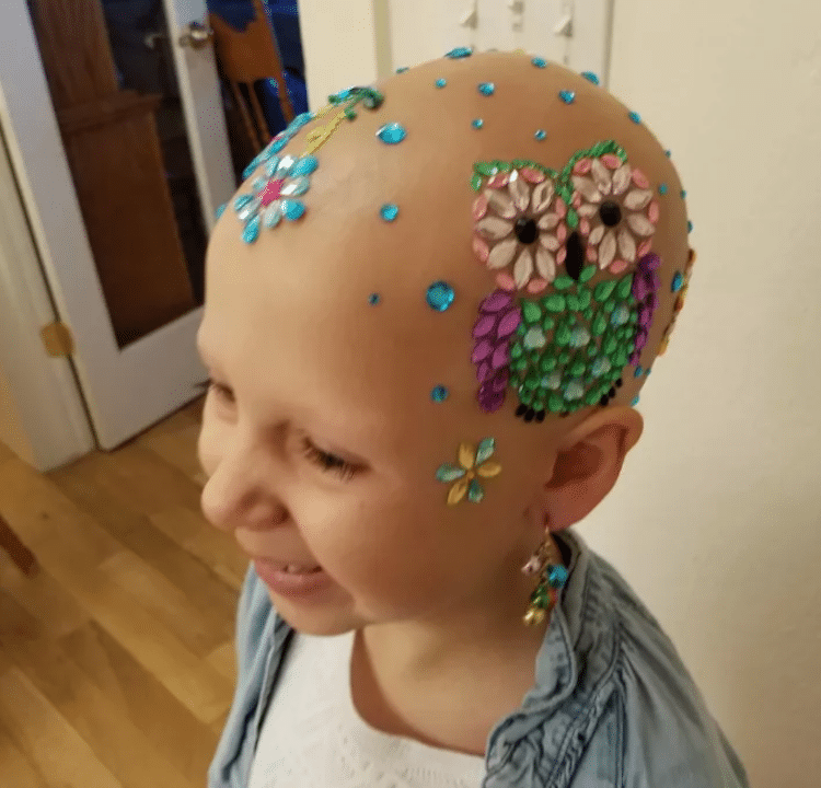 crazy hair day alopecia daniella vinanti wride ginessa inspiring stories