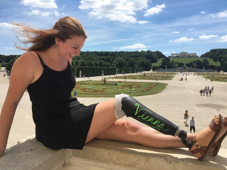 Chalkboard Leg Chalkboard Art Prosthetic Leg Travel Devgal