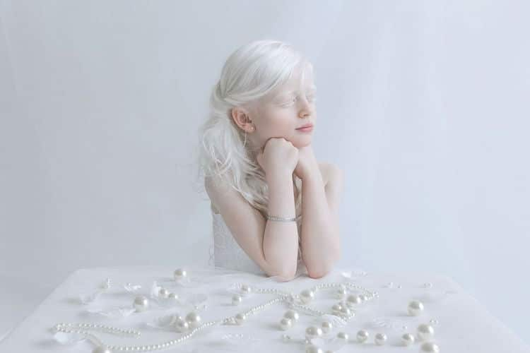Porcelain Beauty 2 Yulia Taits Pictures of Albinism People with Albinism