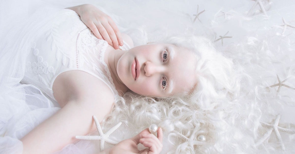 Series Of Albinism Pictures Shows Ethereal Beauty Of