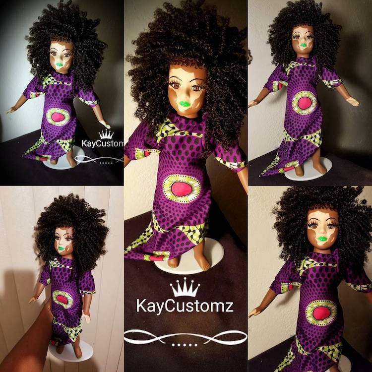 Custom Dolls with Vitiligo by Kay Custom