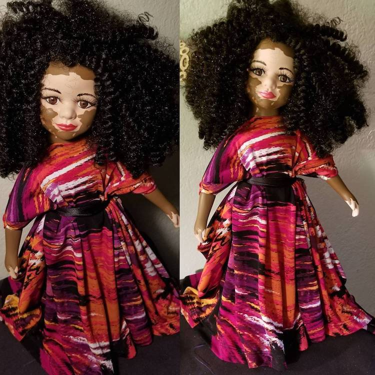 Custom Dolls with Vitiligo by Kay Custom