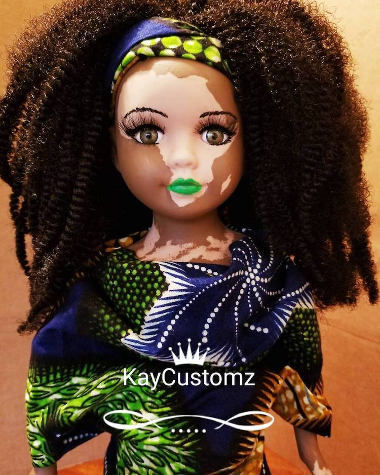 Custom Made Dolls with Vitiligo by Kay Custom