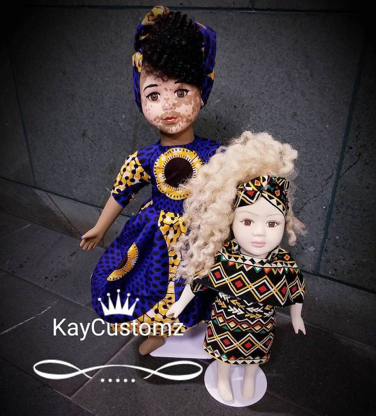 Custom Made Dolls with Vitiligo by Kay Custom