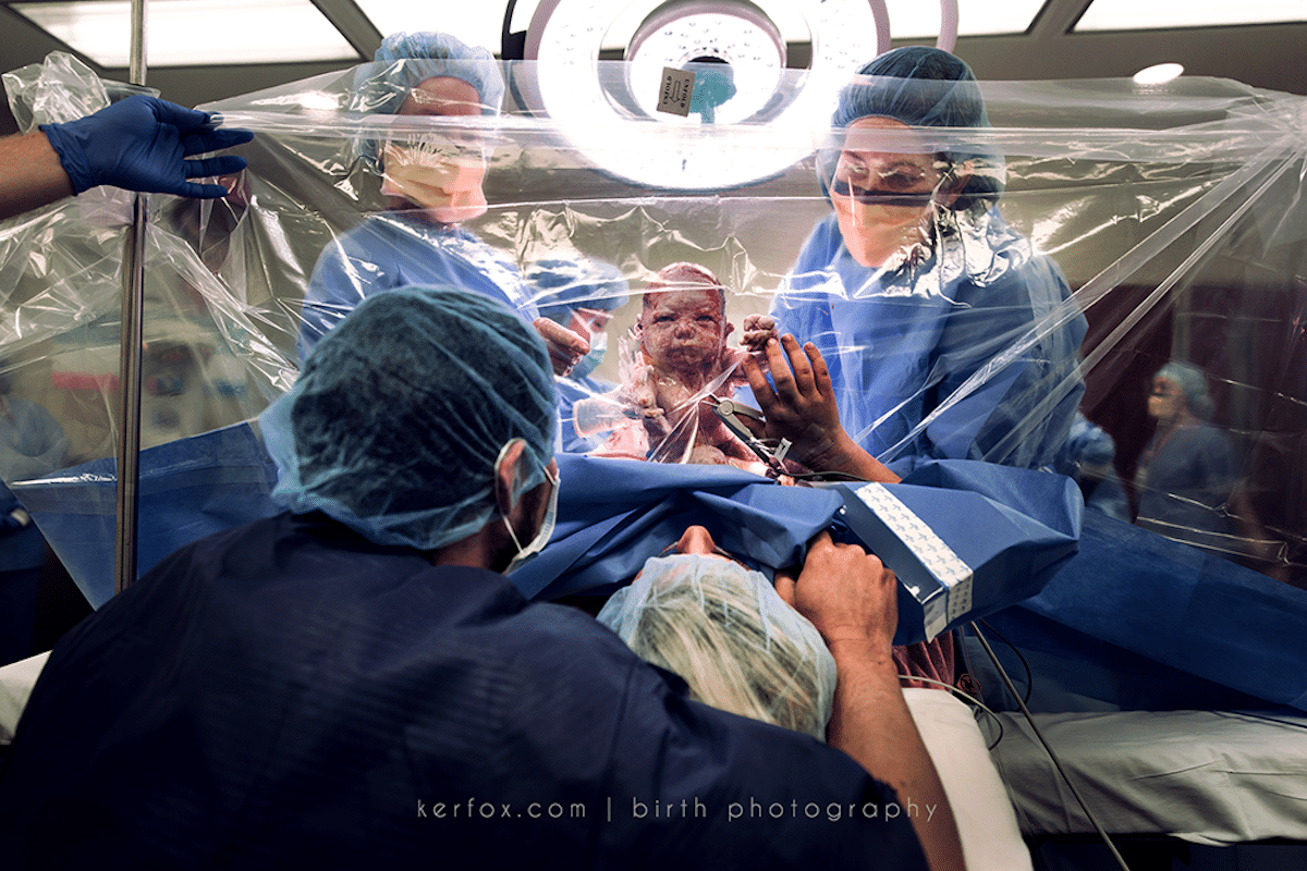 Birth Documentary Photography