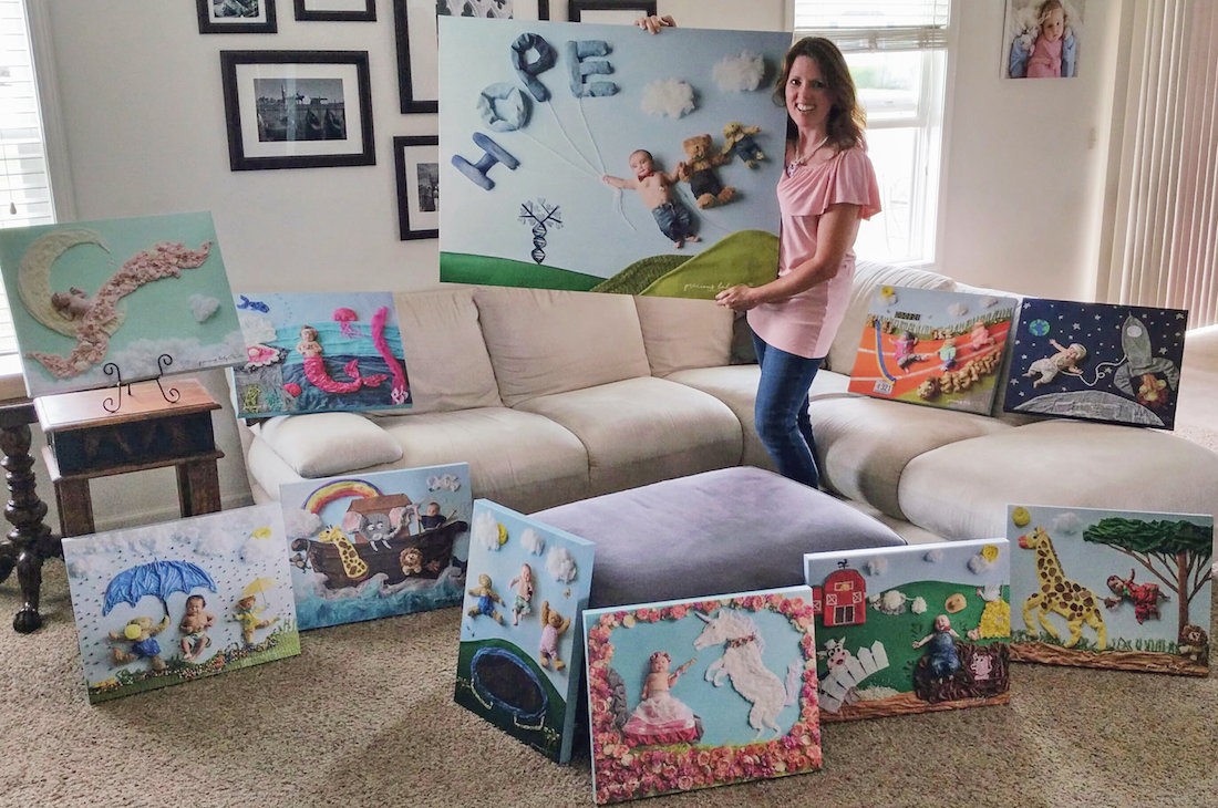 Precious Baby Project Angela Forker Babies with Disabilities