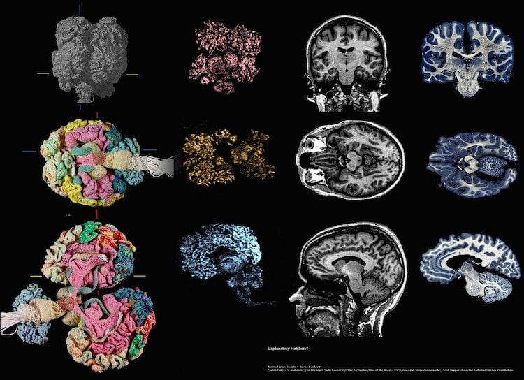 Knitted Human Brain by Dr Karen Norberg