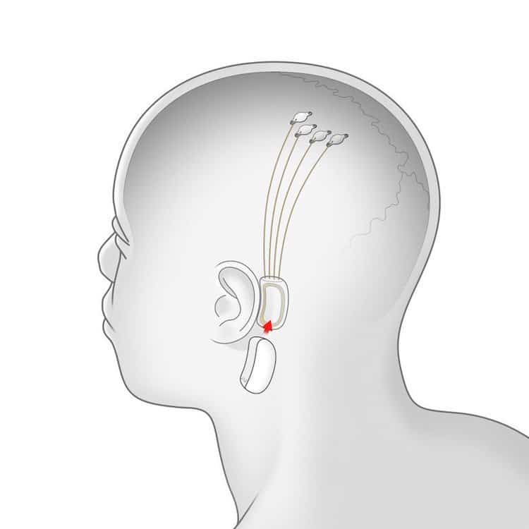 Brain Implant by Neuralink