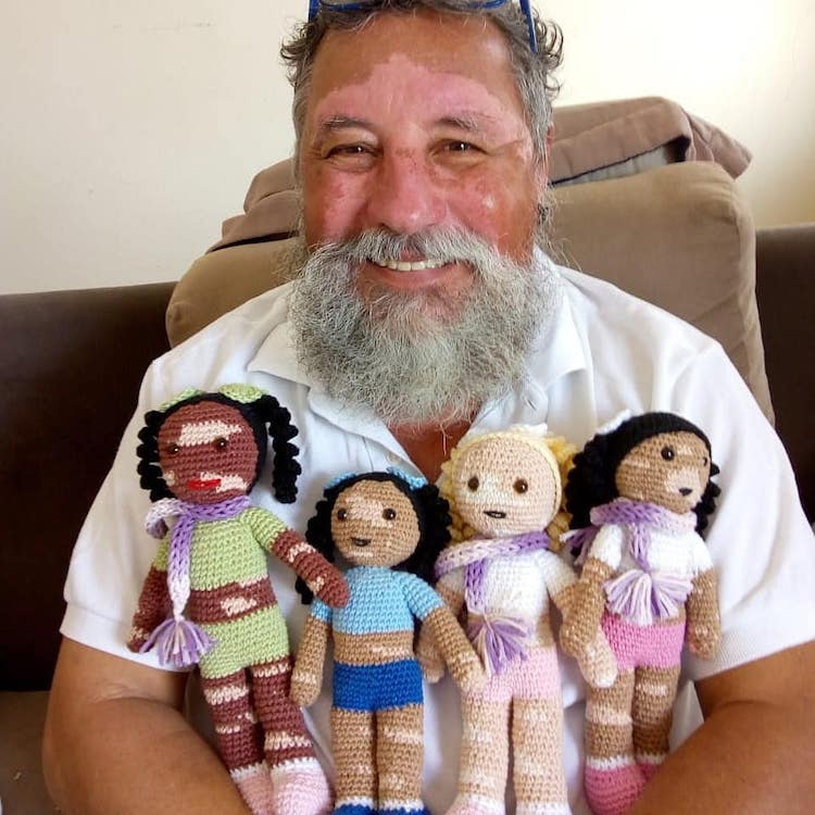 Grandfather With Vitiligo Crochets Dolls With Vitiligo For Kids To Feel Better