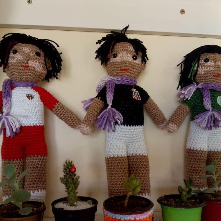 Muñecas con vitiligo