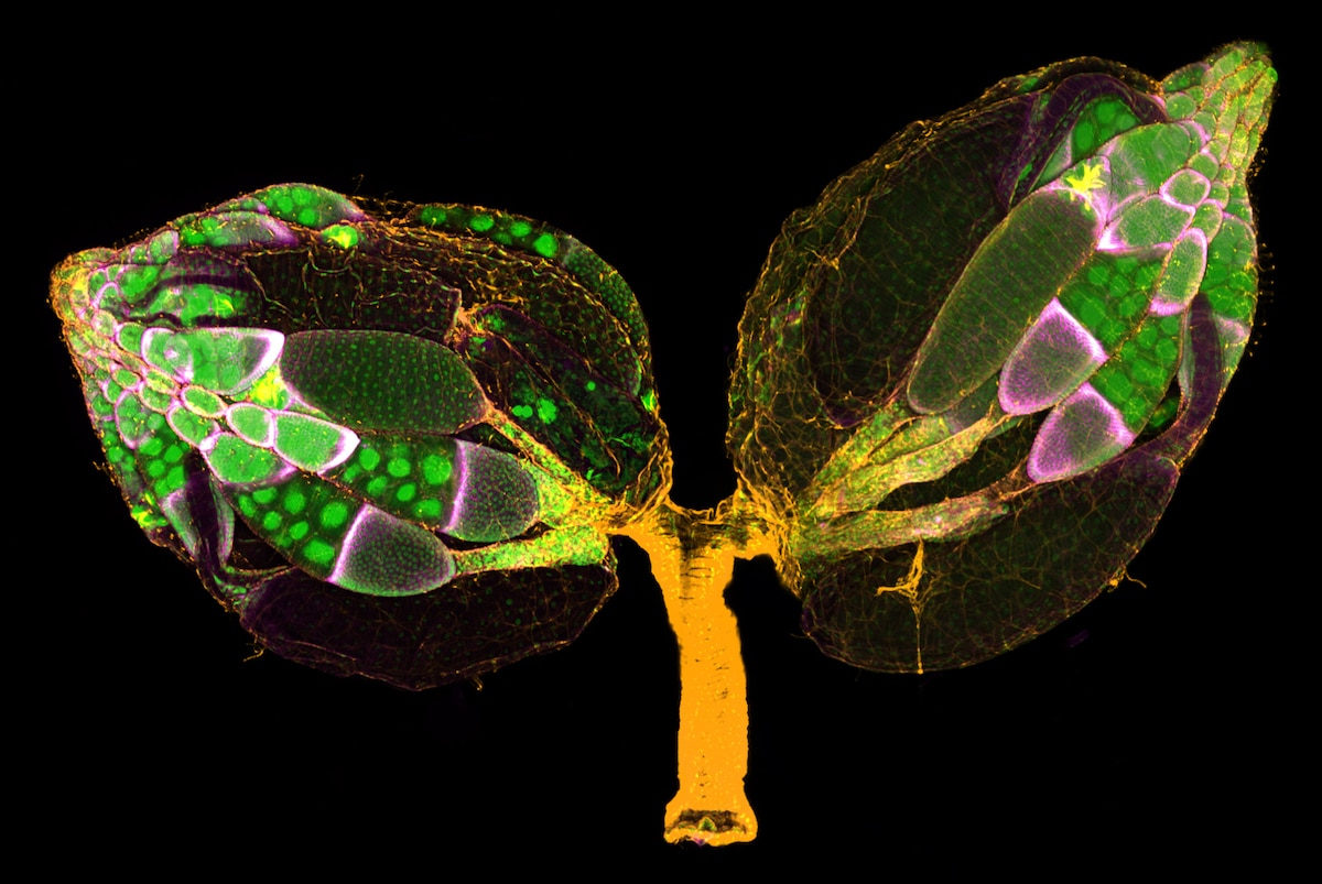 A pair of ovaries from an adult Drosophila female stained for F-actin (yellow) and nuclei (green); follicle cells are marked by GFP (magenta)