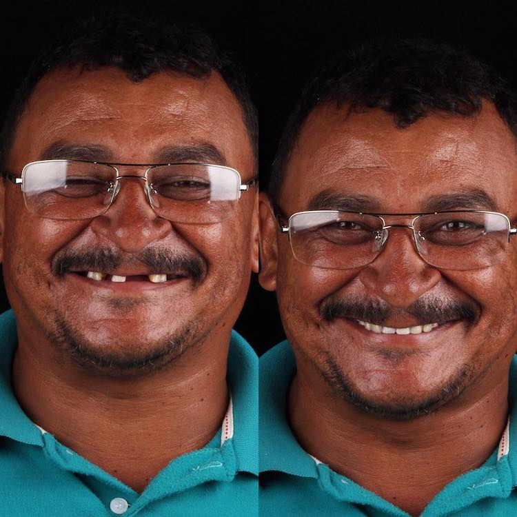 Dentist Felipe Rossi Fixes Teeth of Poor People