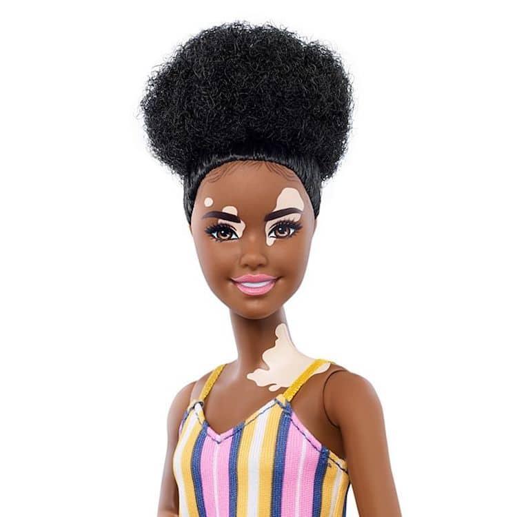 Muñeca con vitiligo de Barbie Fashionistas
