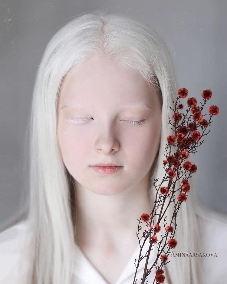 niña con albinismo y heterocromía