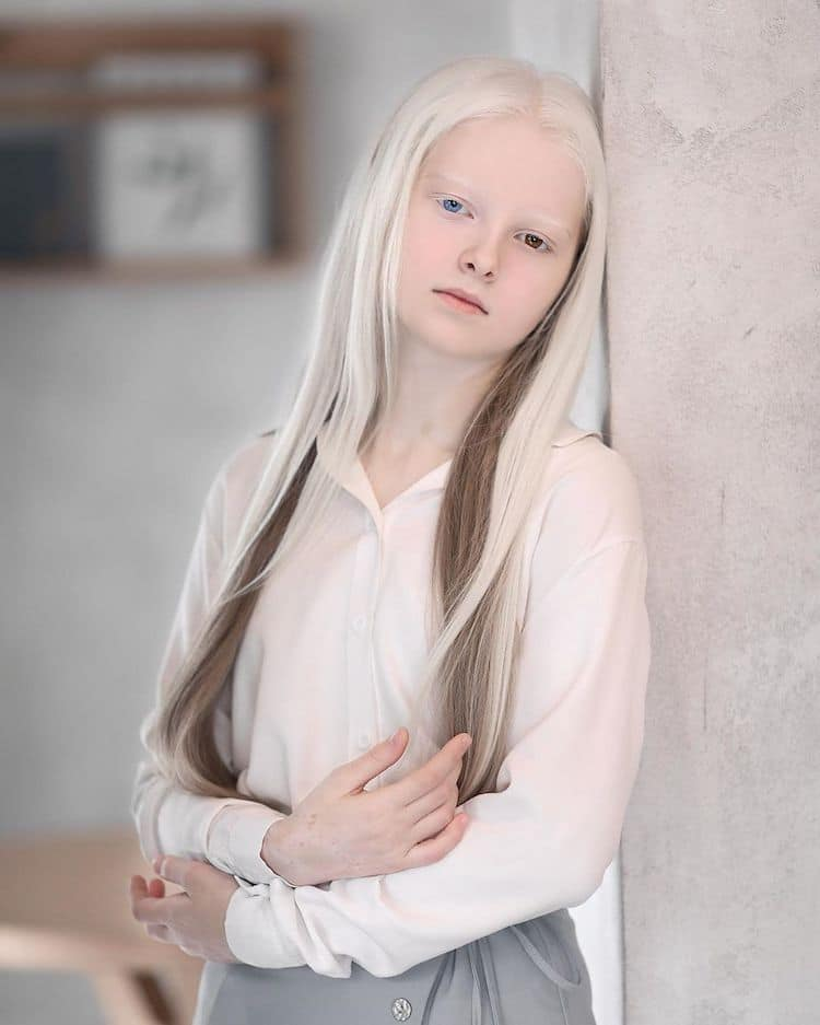 Amina Ependieva, Girl With Heterochromia Albinism and d