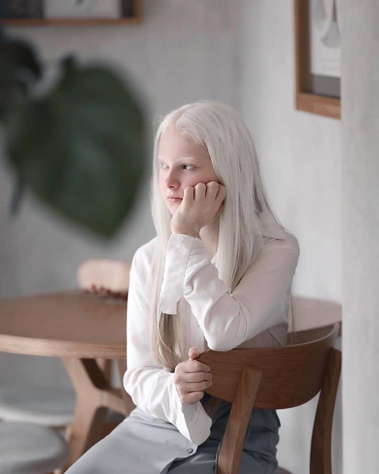 Person with Heterochromia