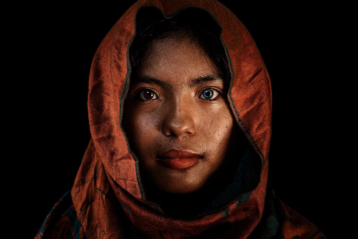 Retrato de una joven vietnamita con heterocromía