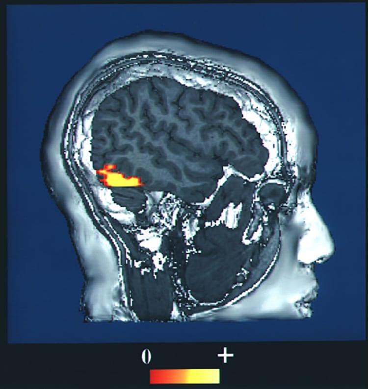 area fusiforme de las caras