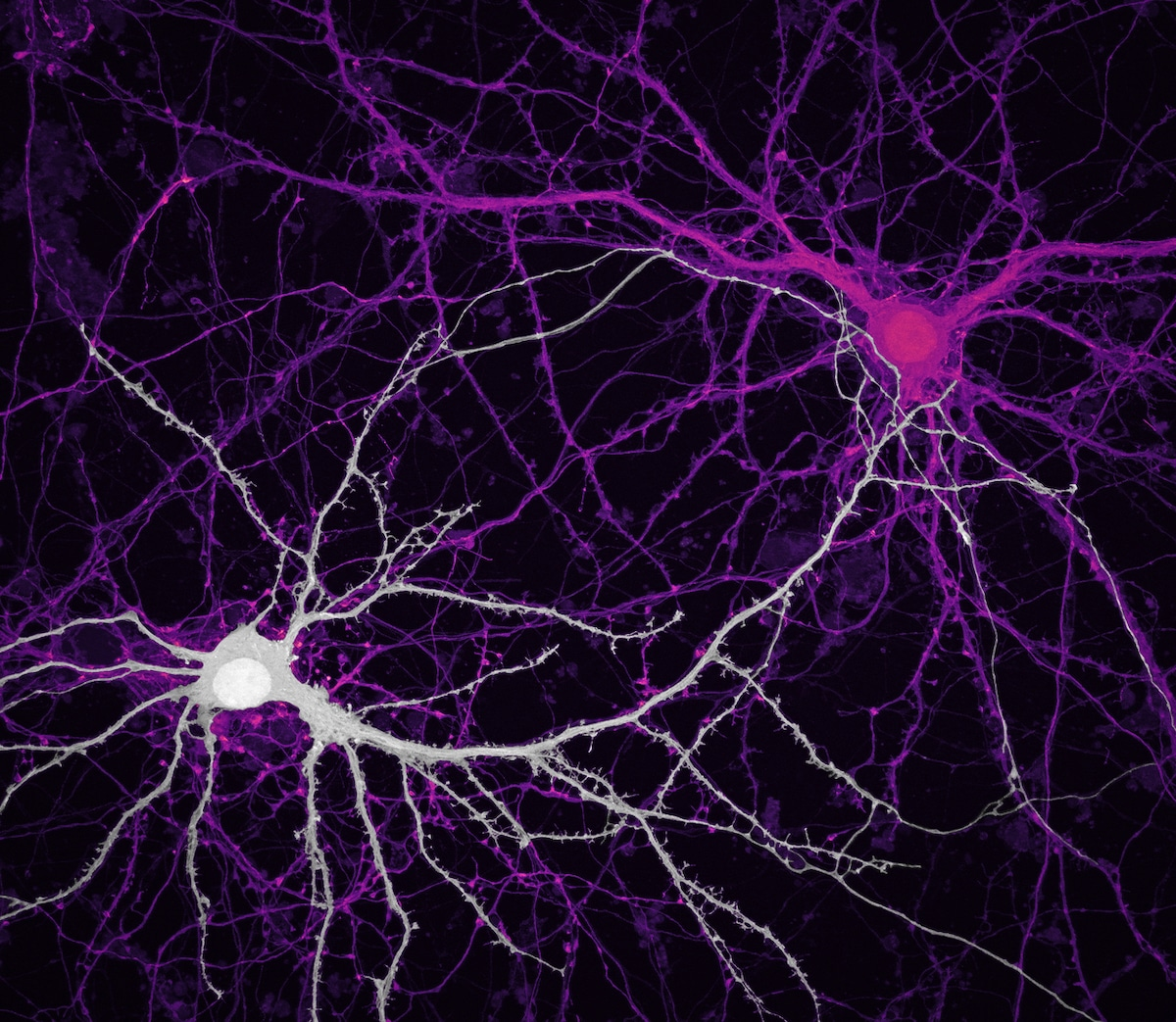 Confocal Image of Connections between hippocampal neurons