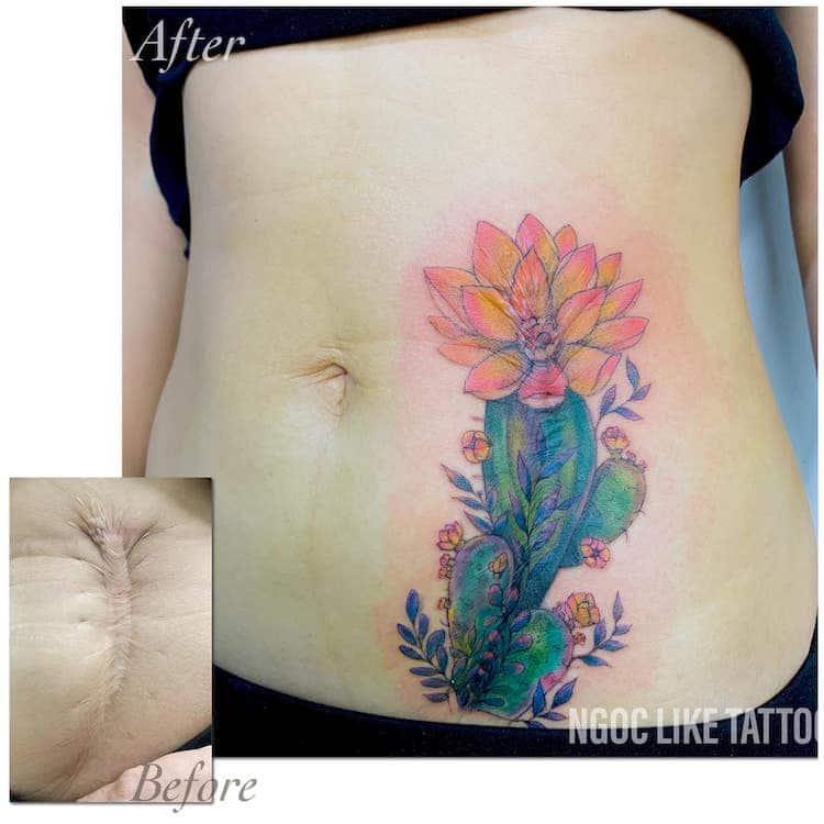 Tatuajes para tapar cicatrices de Ngoc Like Tattoo
