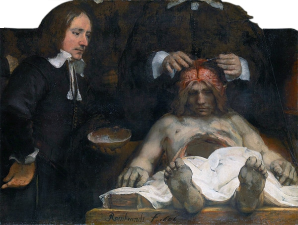 Anatomy Lesson by Rembrandt