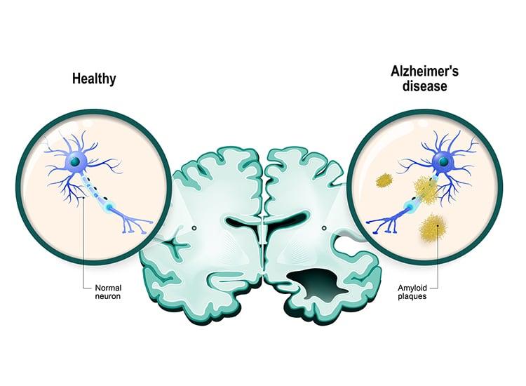 Alzheimer's disease Neurons and brain