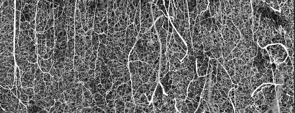 3D vasculature of an adult mouse brain