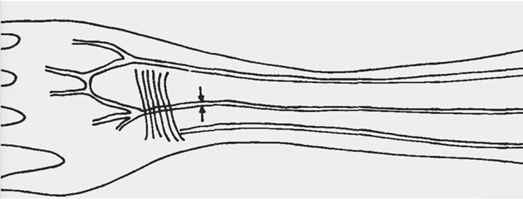 Median Artery Evolution