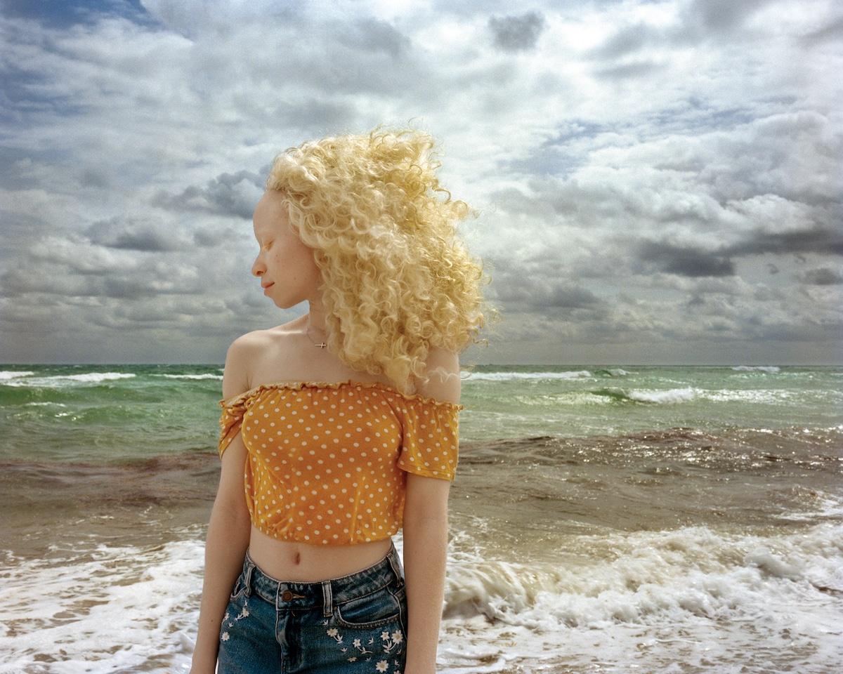 Blond Albino Woman on the Beach