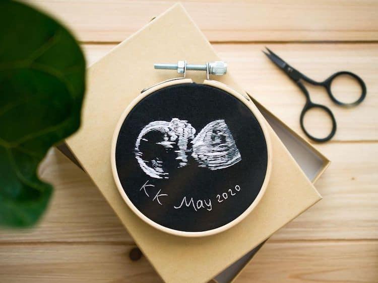 Ultrasound Embroidery by Yulia Sherbak