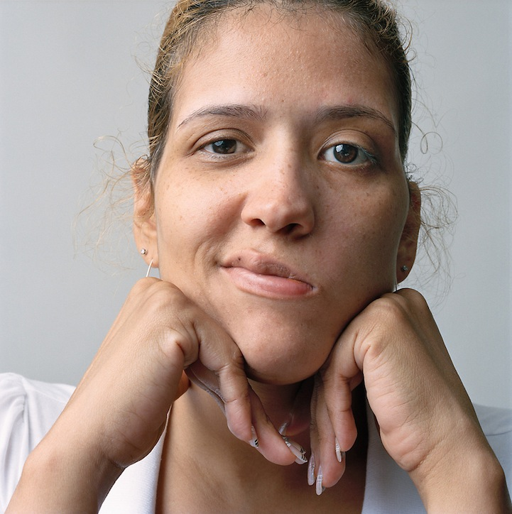 Beautiful Portraits of Partial Facial Paralysis Patients