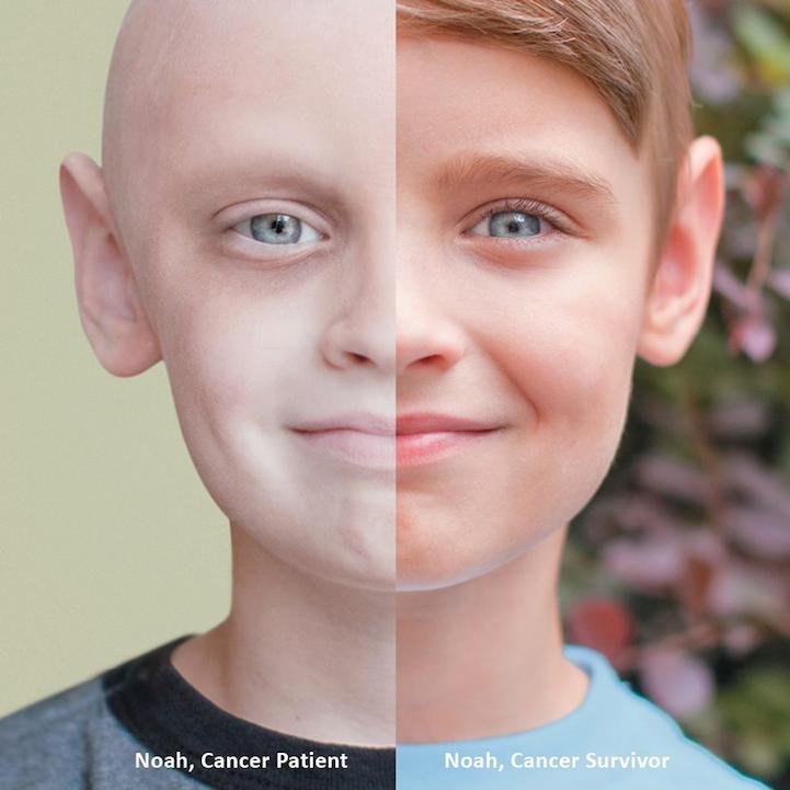 aggressive cancer survivors
